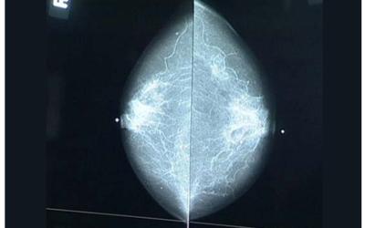 Μαστογραφία, γιατί είναι τόσο σημαντική