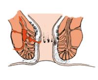 απόστημα συριγγιο πρωκτού | Χειρουργός Εύοσμος Ιωάννης Παπαγιαννόπουλος