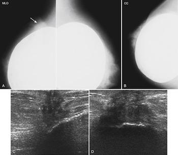 ανιχνευση καρκίνο σε μαστο με ενθέματα - Μαστολόγος Εύοσμος Ιωάννης Παπαγιαννόπουλος